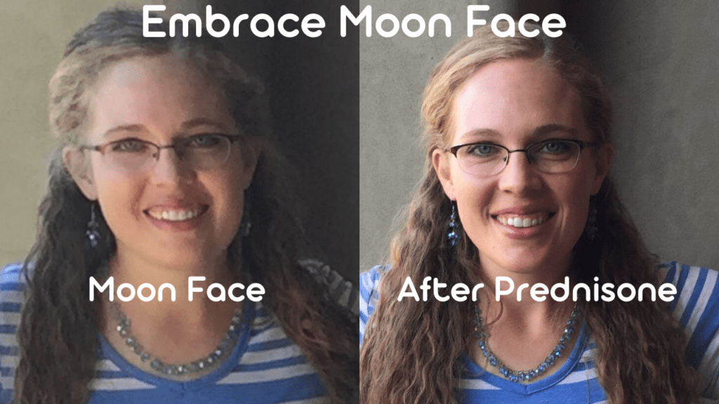 Prednisone Moon Face before and after