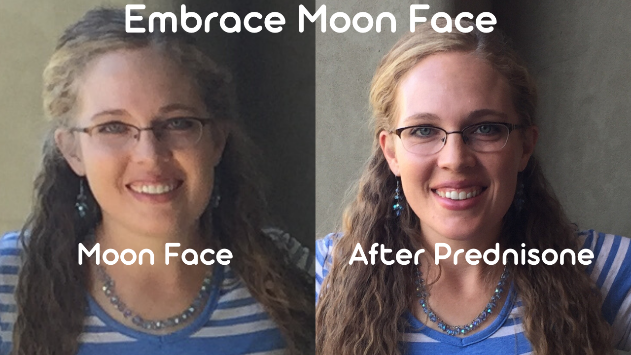 Embrace Moon Face
